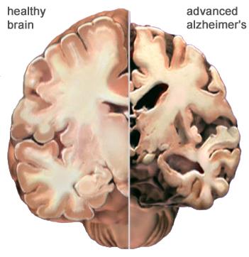O hemisfério esquerdo é de um cérebro normal. O direito é de um cérebro afetado com caso avançado de doença de Alzheimer.