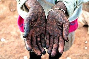 Mãos de trabalhadora submetida a mão-de-obra escrava. A pecuária é uma das atividades que mais exploram seres humanos no Brasil